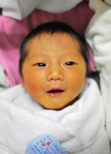新生儿黄疸如何预防和治疗