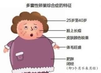 多囊卵巢能怀孕吗