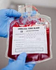 脐带血要不要保存