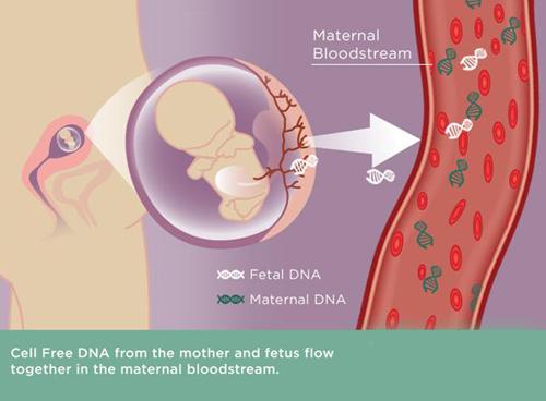 美国无创DNA产前检查