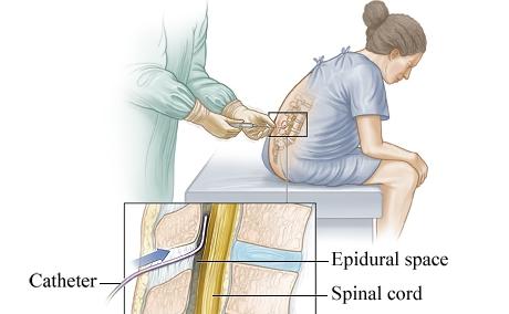 无痛分娩epidural