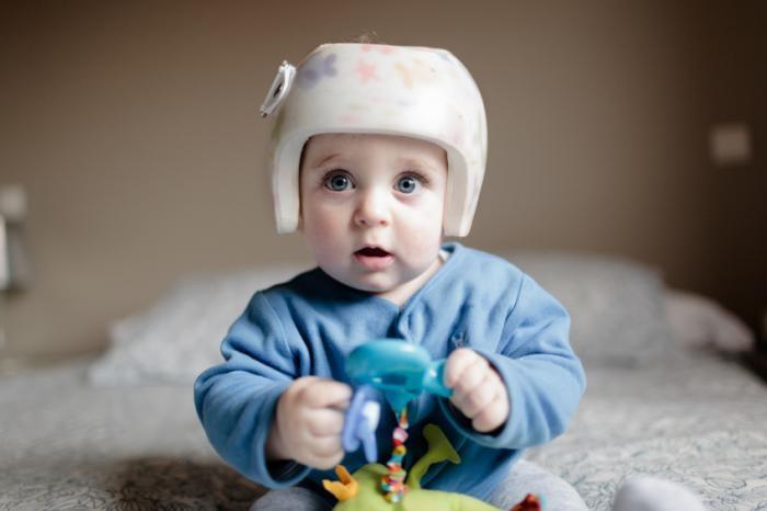 宝宝头型影响因素