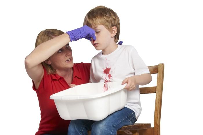 孩子经常流鼻血