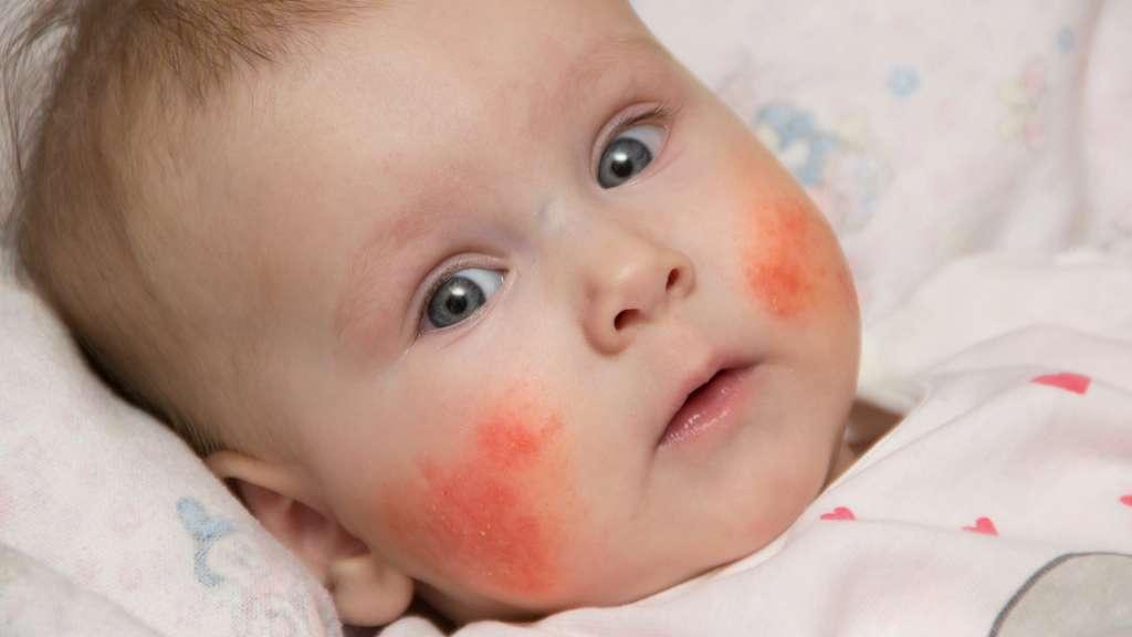 宝宝湿疹与辅食过敏关系