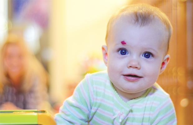 胎记影响健康吗