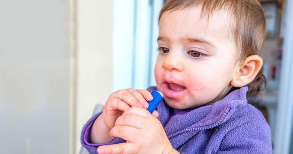 宝宝湿疹的症状