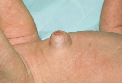 美国宝宝脐疝umbilical hernia
