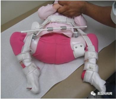 宝宝髋关节发育不良