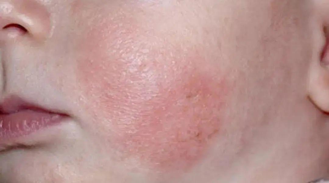 乳弱激素湿疹膏