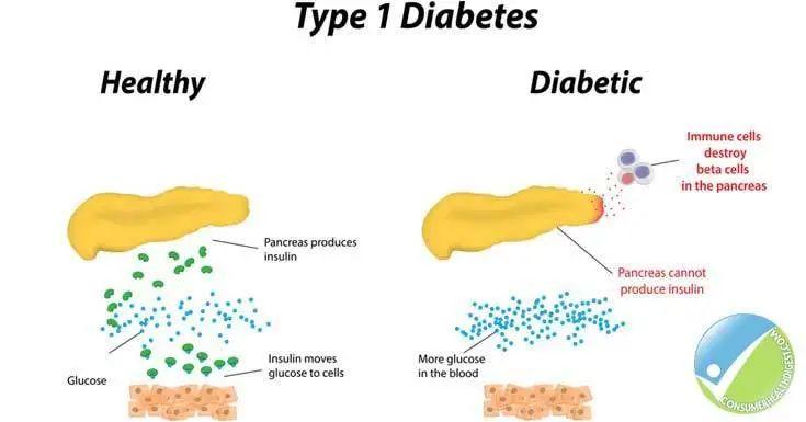 美国儿童糖尿病